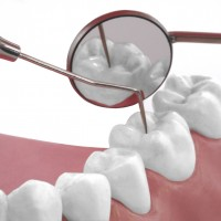 Four Common Dental Services Performed In Shepherdsville KY