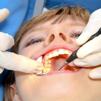 How Sedation Dentistry Eases Stress