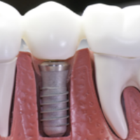 What Can You Expect From Denture Repair Services in Garden City NY?
