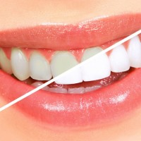 Professional Teeth Whitening for Impressive Smiles and How Veneers Easily Correct Superficial Oral Imperfections