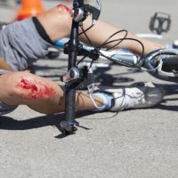 Call a Slip and Fall Accident Lawyer About Compensation for Injuries
