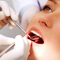 Find an Experienced Root Canal Dentist