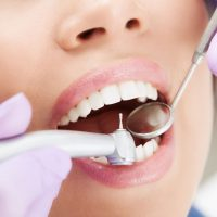 Helpful Tips On Choosing A Dentist