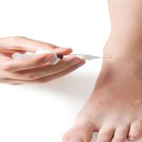 Choosing the Right Podiatrist